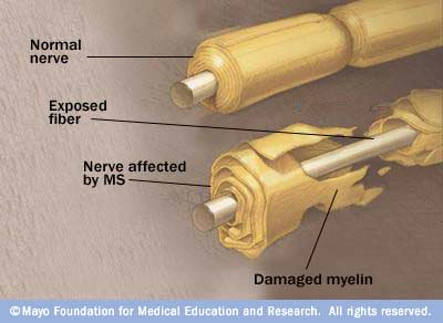 neuron_myelin